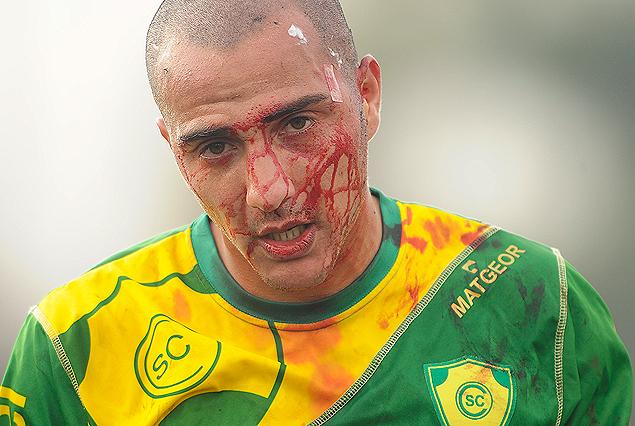 Sebastián Palermo sangrando profusamente por un corte en la cabeza. No pudo seguir en cancha.